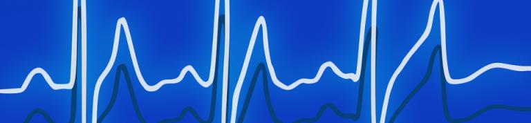 Nginx: PHP-FPM Statusseite einschalten